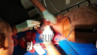 Seorang Pria di Buru Ditemukan Tergeletak Berlumuran Darah di Aspal